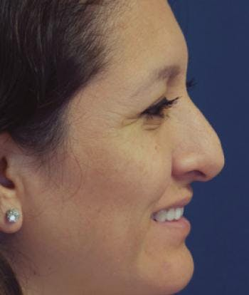 Rhinoplasty Gallery - Patient 4861617 - Image 1