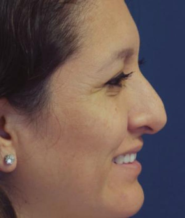 Rhinoplasty Gallery - Patient 4861617 - Image 1