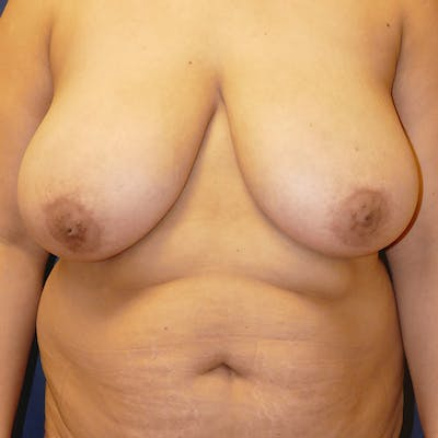 Breast Lift Gallery - Patient 4861620 - Image 1
