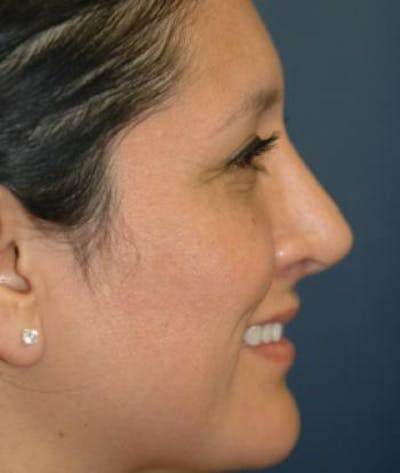 Rhinoplasty Gallery - Patient 4861617 - Image 2