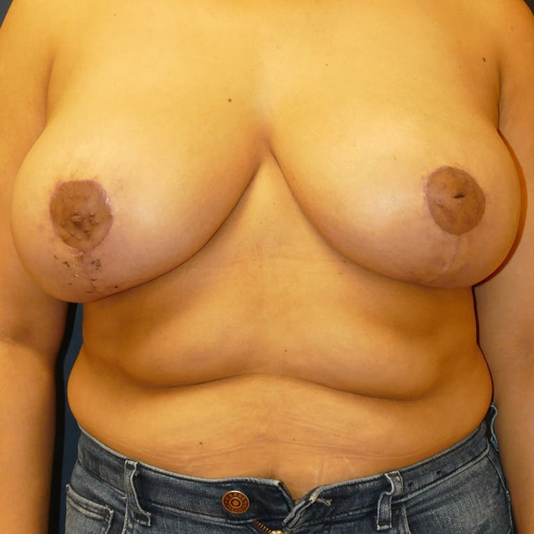 Breast Lift Gallery - Patient 4861620 - Image 2