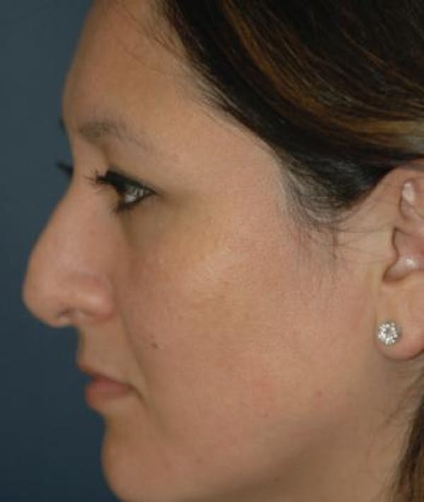 Rhinoplasty Gallery - Patient 4861617 - Image 5