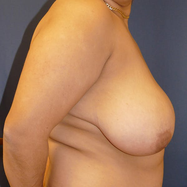 Breast Lift Gallery - Patient 4861620 - Image 3