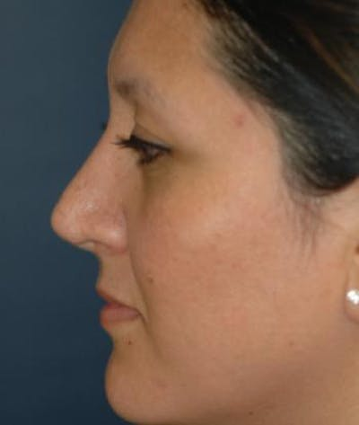 Rhinoplasty Gallery - Patient 4861617 - Image 6