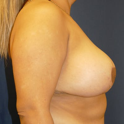 Breast Lift Gallery - Patient 4861620 - Image 4