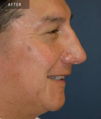 Rhinoplasty Gallery - Patient 4861621 - Image 2