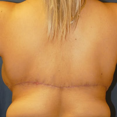 Breast Lift Gallery - Patient 4861620 - Image 6