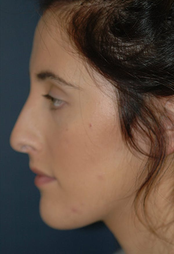 Rhinoplasty Gallery - Patient 4861622 - Image 1