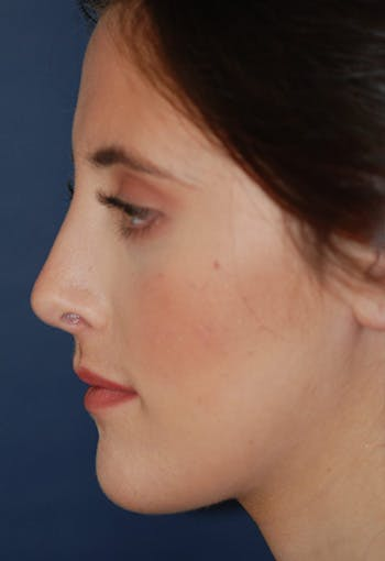 Rhinoplasty Gallery - Patient 4861622 - Image 2