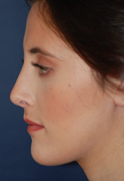 Rhinoplasty Gallery - Patient 4861622 - Image 2