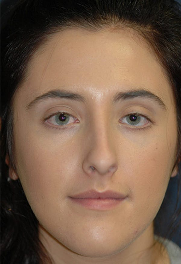 Rhinoplasty Gallery - Patient 4861622 - Image 3