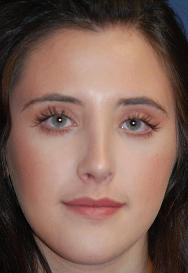 Rhinoplasty Gallery - Patient 4861622 - Image 4