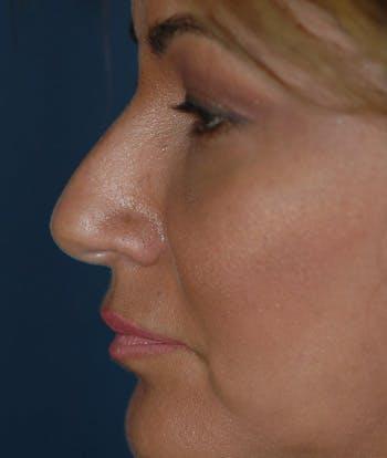 Rhinoplasty Gallery - Patient 4861623 - Image 1