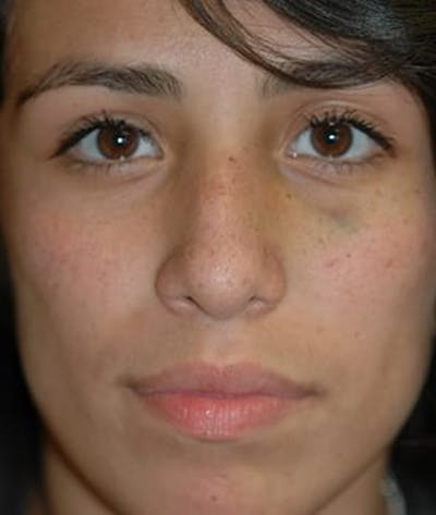 Rhinoplasty Gallery - Patient 4861626 - Image 25