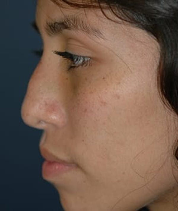 Rhinoplasty Gallery - Patient 4861626 - Image 3