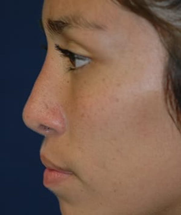 Rhinoplasty Gallery - Patient 4861626 - Image 4