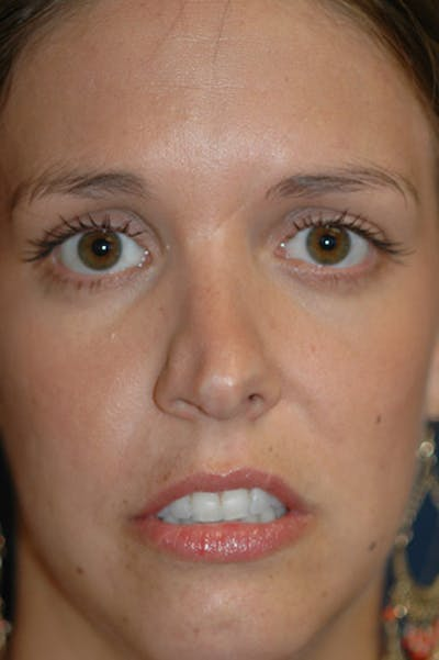 Rhinoplasty Gallery - Patient 4861627 - Image 26