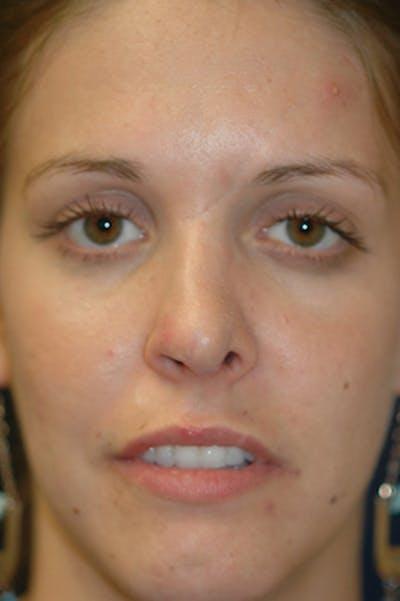 Rhinoplasty Gallery - Patient 4861627 - Image 2
