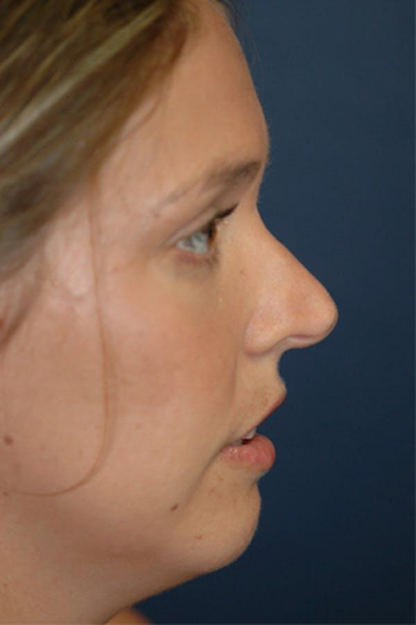 Rhinoplasty Gallery - Patient 4861627 - Image 3
