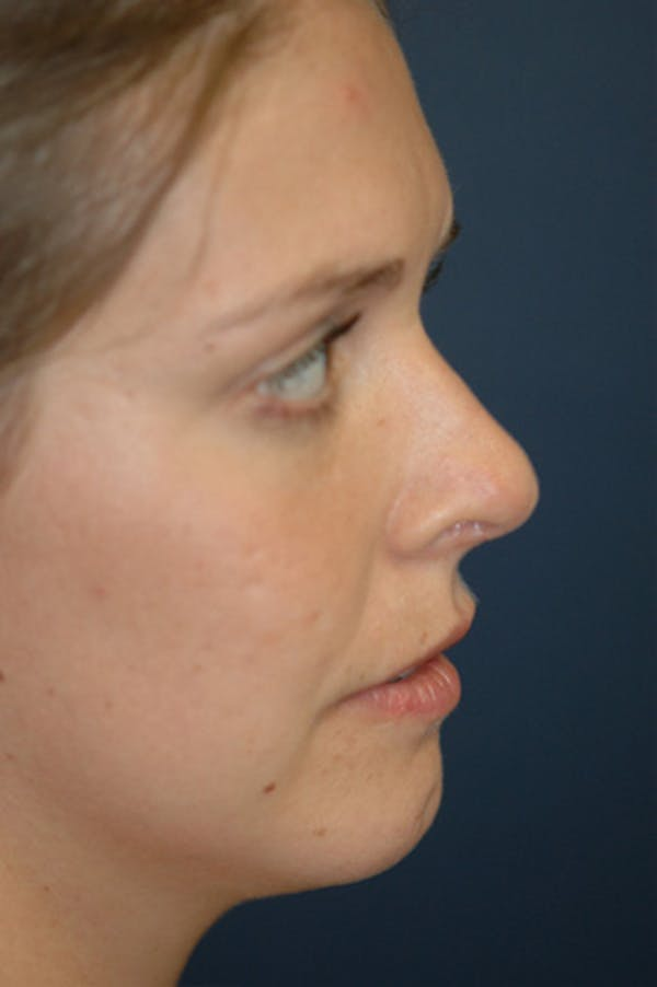 Rhinoplasty Gallery - Patient 4861627 - Image 4