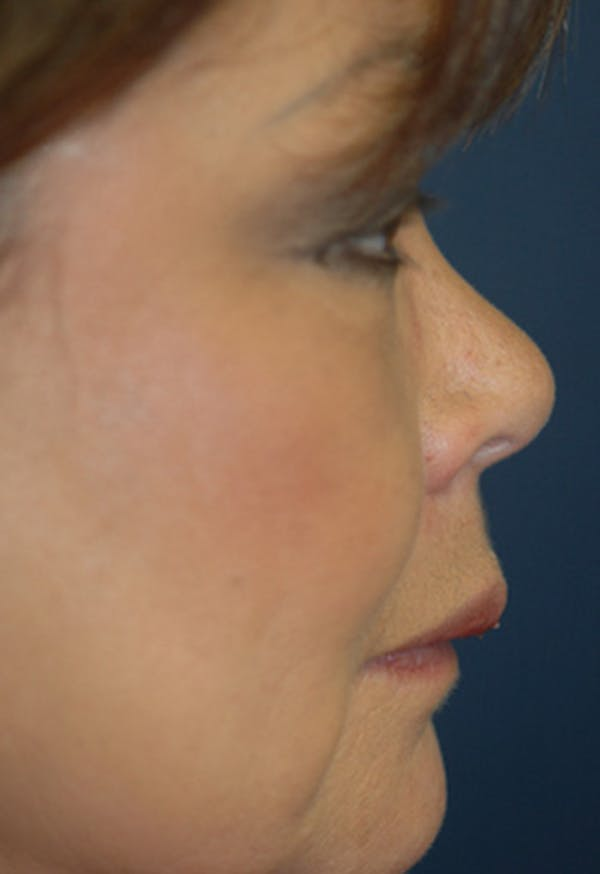 Rhinoplasty Gallery - Patient 4861628 - Image 1