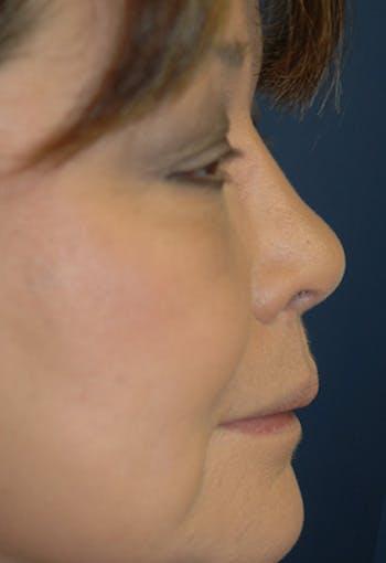 Rhinoplasty Gallery - Patient 4861628 - Image 2