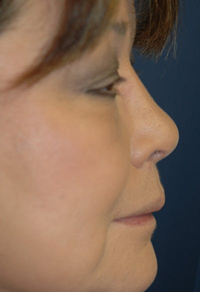 Rhinoplasty Gallery - Patient 4861628 - Image 2