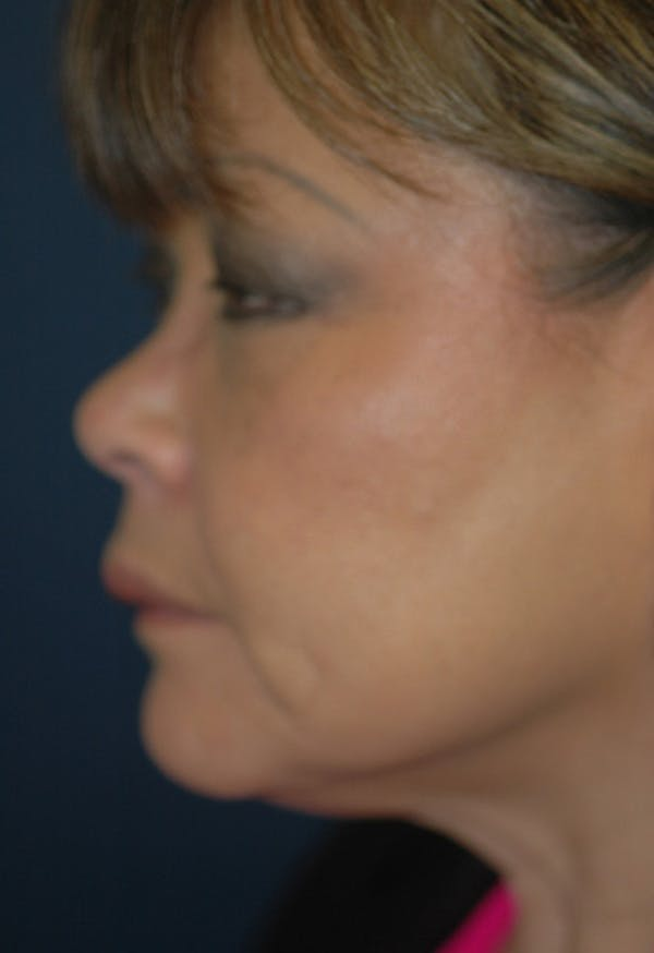 Rhinoplasty Gallery - Patient 4861628 - Image 3