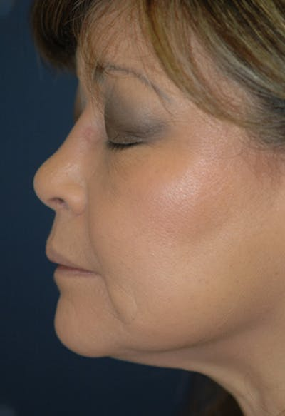 Rhinoplasty Gallery - Patient 4861628 - Image 4