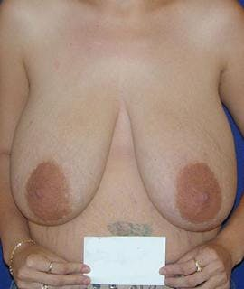 Breast Reduction Gallery - Patient 4861631 - Image 1