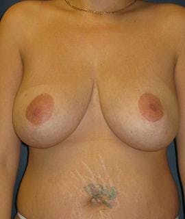 Breast Reduction Gallery - Patient 4861631 - Image 2