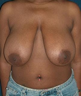 Breast Reduction Gallery - Patient 4861634 - Image 1