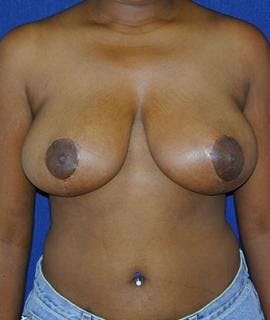 Breast Reduction Gallery - Patient 4861634 - Image 2