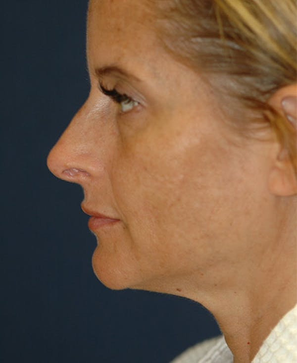 Rhinoplasty Gallery - Patient 4861638 - Image 3