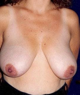 Breast Reduction Gallery - Patient 4861636 - Image 1