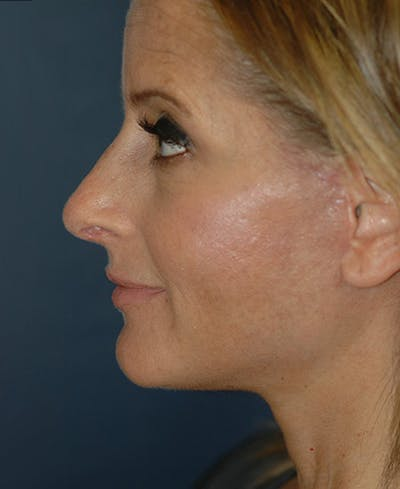 Rhinoplasty Gallery - Patient 4861638 - Image 4