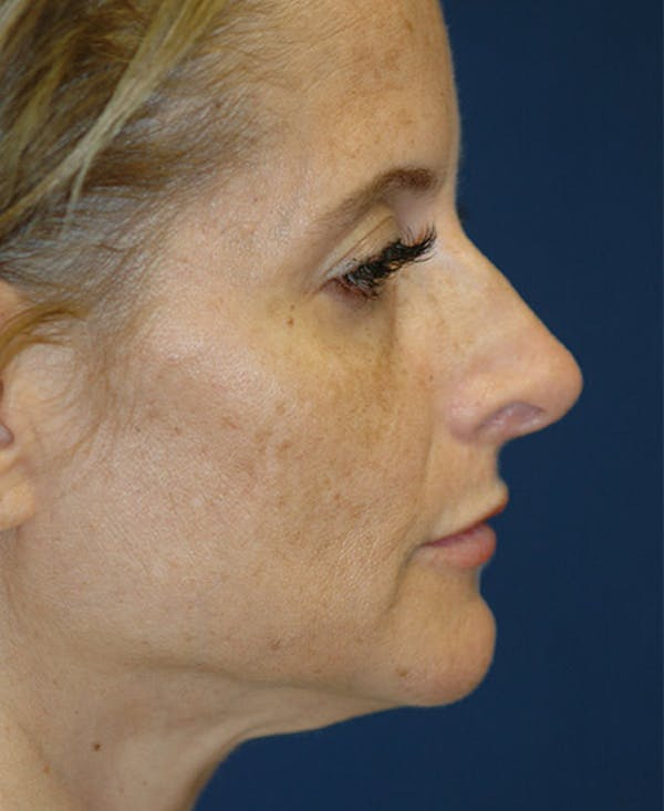Rhinoplasty Gallery - Patient 4861638 - Image 5