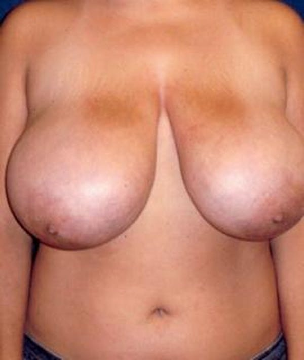 Breast Reduction Gallery - Patient 4861639 - Image 1