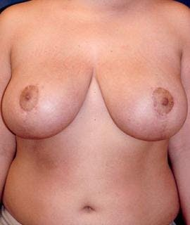 Breast Reduction Gallery - Patient 4861639 - Image 2