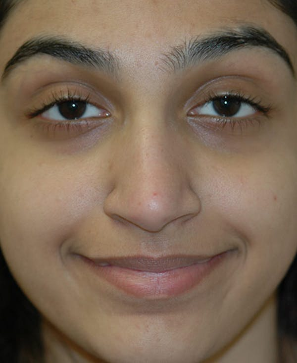 Rhinoplasty Gallery - Patient 4861642 - Image 1