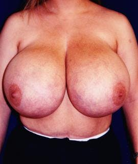 Breast Reduction Gallery - Patient 4861640 - Image 1
