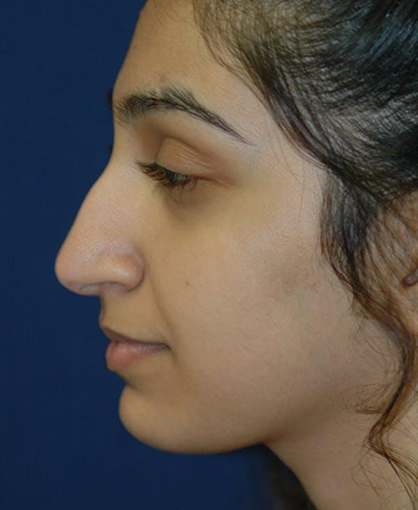 Rhinoplasty Gallery - Patient 4861642 - Image 3