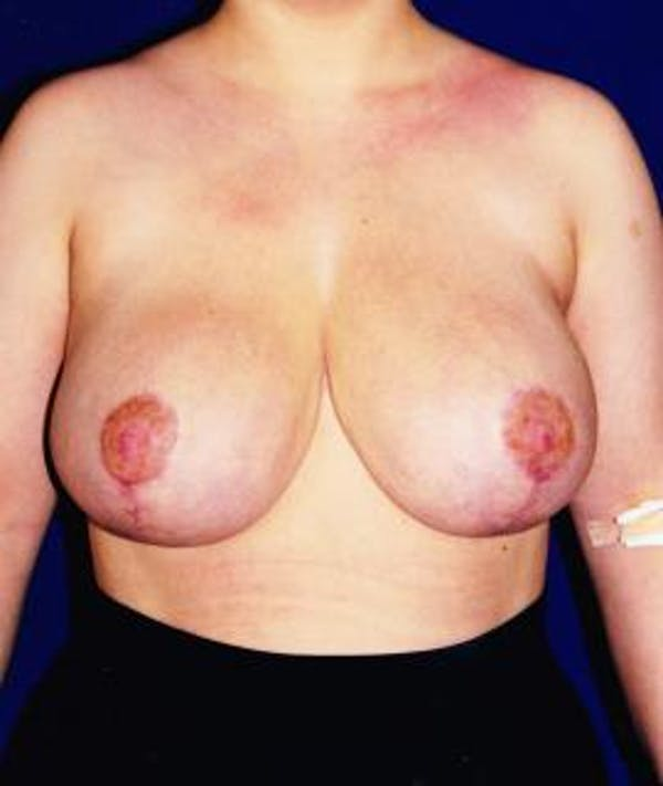 Breast Reduction Gallery - Patient 4861640 - Image 2