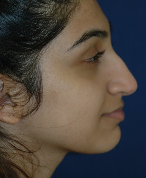 Rhinoplasty Gallery - Patient 4861642 - Image 5