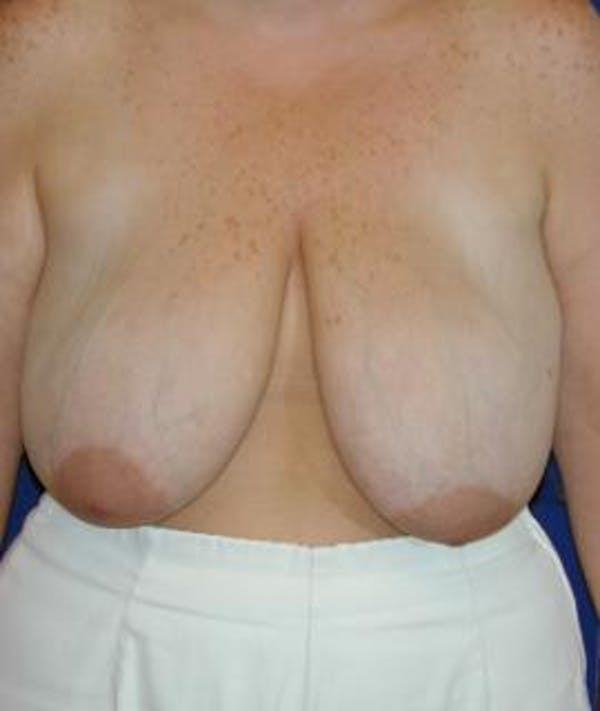 Breast Reduction Gallery - Patient 4861643 - Image 1