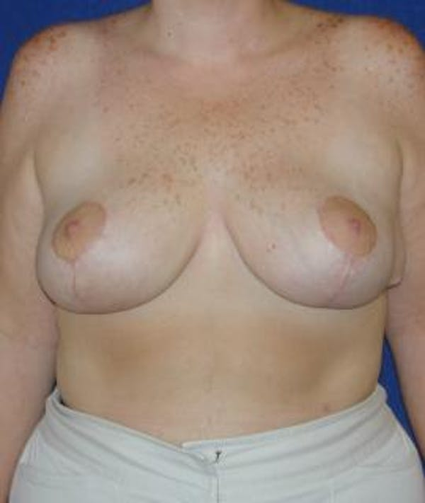 Breast Reduction Gallery - Patient 4861643 - Image 2