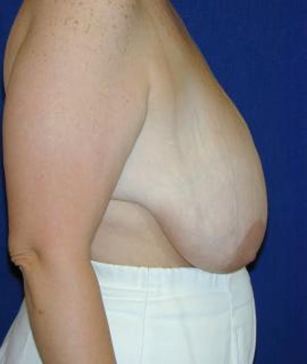 Breast Reduction Gallery - Patient 4861643 - Image 3