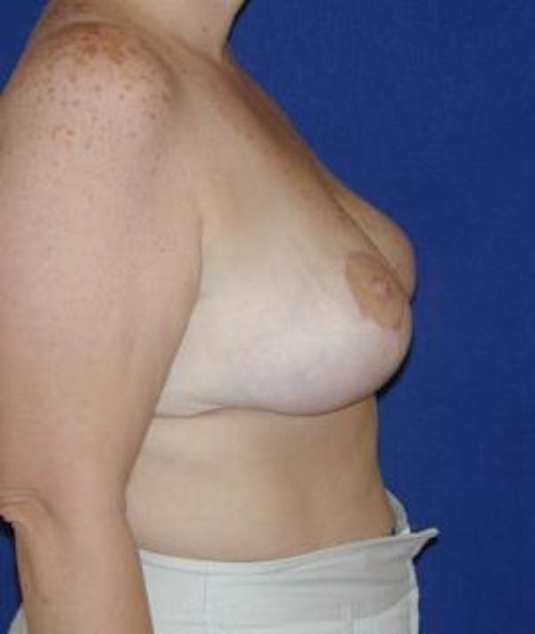 Breast Reduction Gallery - Patient 4861643 - Image 4