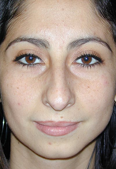 Rhinoplasty Gallery - Patient 4861646 - Image 32