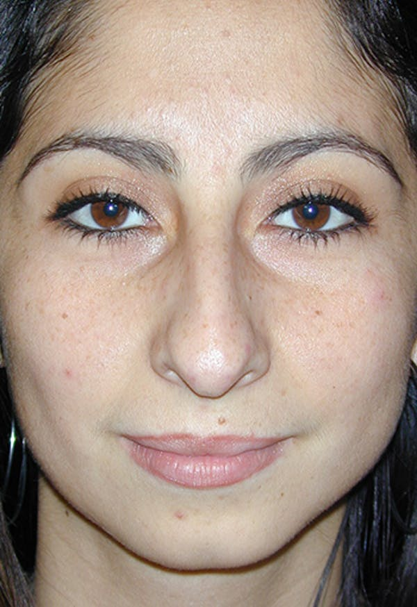 Rhinoplasty Gallery - Patient 4861646 - Image 1